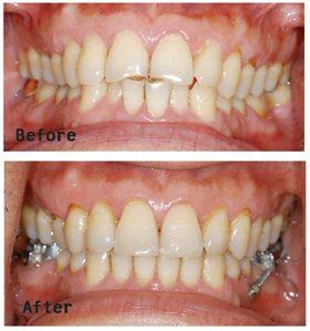 案例1:患者門牙排列不整,以鐵線拉平後,大幅改善美觀問題。(圖片/周勵助醫師提供...