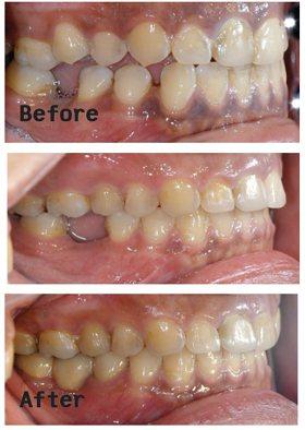 案例2:患者因長期缺牙,造成後方牙齒前傾,及前方牙齒後移,矯正拉回後再進行假牙贗...