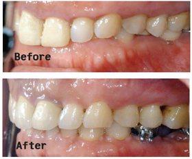 案例3:患者「上齒蓋下齒」問題嚴重,利用矯正器將上排牙齒往上拉。(圖片/周勵助醫...