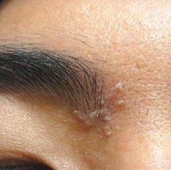 脂漏型皮膚炎患者易在眉心,或T字部位形成黃白色皮塊。 圖/王致統醫師提供