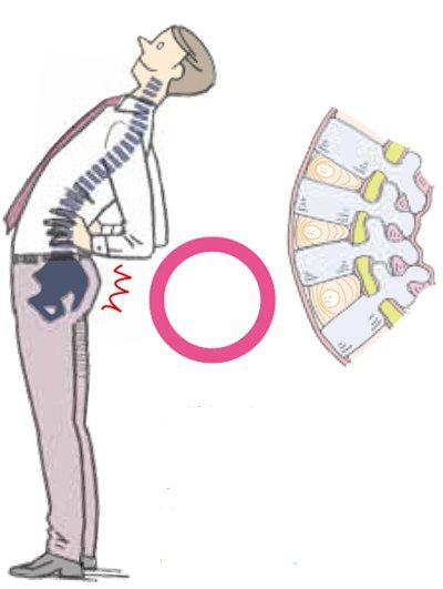 後仰上身時⋯⋯反過來對向後方的椎間關節施壓,可降低對椎間...