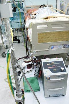 葉克膜體外循環機不是萬靈丹,必須視狀況使用。(圖/報系資料照 )