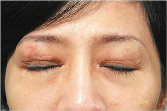 一名30多歲的女性前後割了五次雙眼皮,眼皮上布滿了手術疤痕,但她仍想嘗試第六次,...
