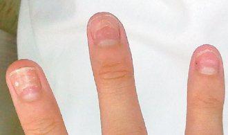 一病患在手足口症痊癒數周後,指甲剝落。 圖/葉勝雄醫師提供