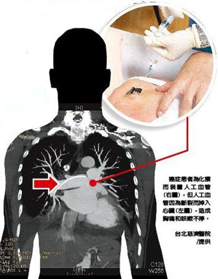 台北慈濟醫院╱提供