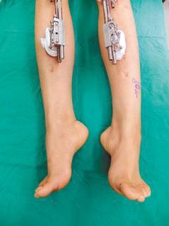 女子赴大陸做骨骼延長術,導致馬蹄足無法行走,向台北榮總求救。 圖/台北榮總提供
