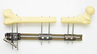 骨延長術先打斷腿骨,利用器械逐步延長,待缺口長出新骨頭。 記者林澔一/攝影