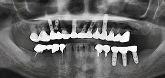 患者植入9支人工牙根,由於牙周病未獲控制,術後三處出現植體牙周炎,有些人工牙根甚...