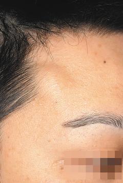 額頭脂肪瘤,常見凸起。 圖呂佩璇醫師提供