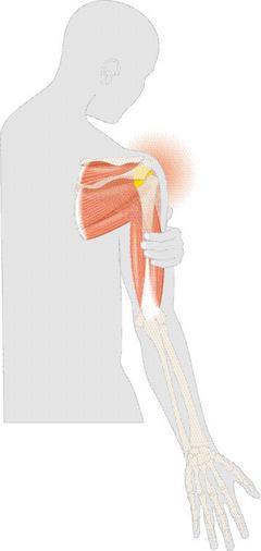 五十肩即「未完全斷裂旋轉肌袖損傷」,患者經常手抬到一個角度,就完全抬不起來,常愈...