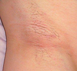 利用電動旋轉刮刀治療狐臭的術後傷口。 圖/何格彰醫師提供