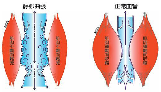 左圖顯示為小腿靜脈功能差,血管浮凸變形,靜脈曲張;右圖為正常狀況,小腿肌肉強健,...