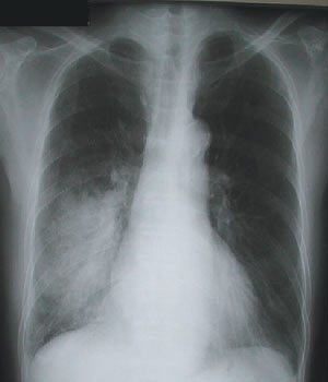 因感染鏈球菌所引發的肺炎,X光片呈現右肺下半部變白。 圖/郭炳宏醫師提供