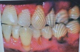 罹患修格連氏乾燥症患者因唾液分泌不足,通常有嚴重蛀牙及牙周病。 記者修瑞瑩/翻攝
