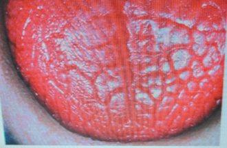 罹患修格連氏乾燥症患者舌頭變得平滑色紅,看起來像牛肉。 記者修瑞瑩/翻攝