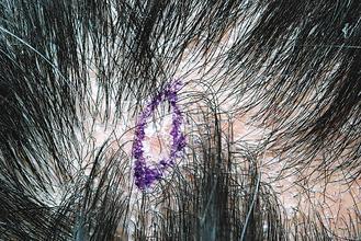 圖1:患部明顯脫屑,非常像脂漏性皮膚炎。 圖/林政緯醫師提供