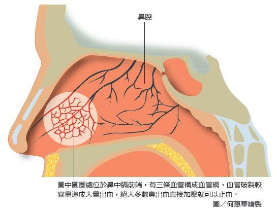 圖中圓圈處位於鼻中膈前端,有三條血管構成血管網,血管破裂較容易造成大量出血,絕大...