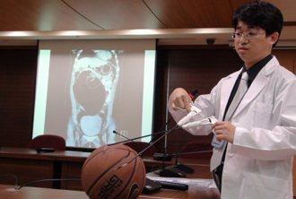 高醫昨天發表少見病例,一名未婚女性罹患卵巢畸瘤,比籃球還大。記者謝梅芬/攝影