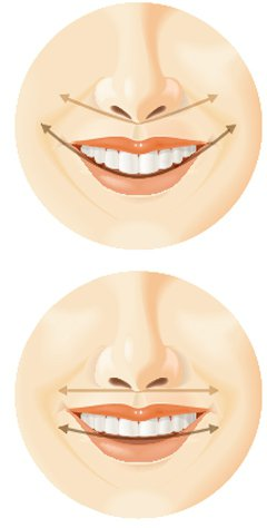 醫師認為,最完美的笑容,應是鼻翼底部連線、上門牙切線與下唇緣線,三線平行。若鼻翼...