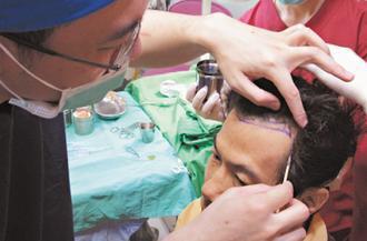 國內雄性禿患者年輕化,有24歲年輕男性花了15萬元植髮,希望自己不再被誤認為中年...