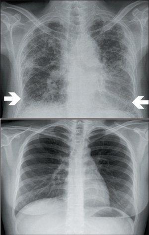 肺纖維化患者的肺臟,雙側下肺葉及肺的周邊出現網狀構造(上圖),與正常肺的影像(下...