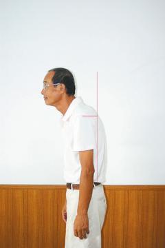 圖1:駝背姿態。 圖/陳俞州治療師提供