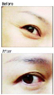 消除魚尾紋,以注射肉毒桿菌素為主,適度讓肌肉放鬆,避免肌肉收縮造成眼尾皺紋。圖/...