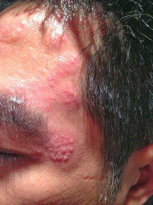 臉部帶狀疱疹發作初期。(圖/羅一鈞醫師提供)