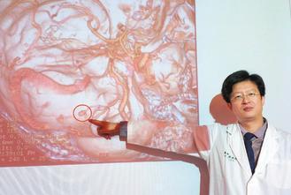 醫師陳春忠說明,顱內動脈瘤像一顆花生米般,直徑約0.5公分,一旦破裂,致死率高達...
