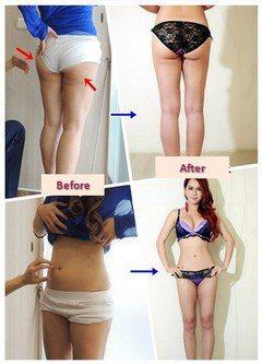邱浚彥醫師表示愈來愈多愛美人士選擇利用天然的自體脂肪來豐胸,原因就在於自體脂肪不...