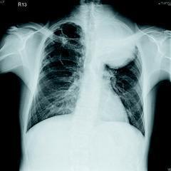 患者肺癌腫瘤長在左上肺葉,10平方公分的巨大腫瘤破壞肋骨,並且往後上背長出。因此...