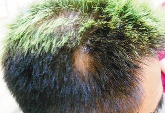 從事美髮業務的型男長期重覆染髮,導致「圓禿」。 圖/張祺璋醫師提供