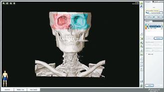 利用電腦事先設定手術計畫,將右眼眶複製到左邊。圖/台北榮總提供
