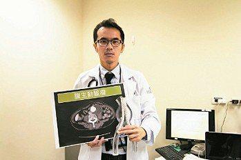 壢新醫院心臟血管外科主治醫師李宗興手持主動脈瘤支架模型。 記者葉臻/攝影