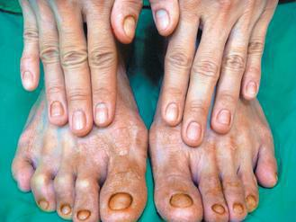 肢端掌蹠型乾癬是乾癬中最複雜的一種,治療上必須更全面。記者王昭月/翻攝