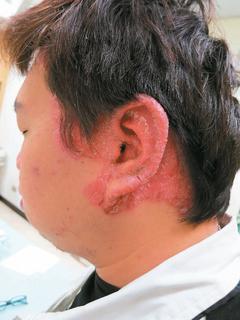冬天日照少,乾癬病情易惡化。圖/雙和醫院提供