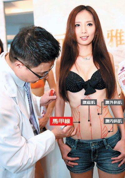 醫師提醒,並非所有女性都可順利練成馬甲線,若過分節食,恐造成月經失調。 本報資料...