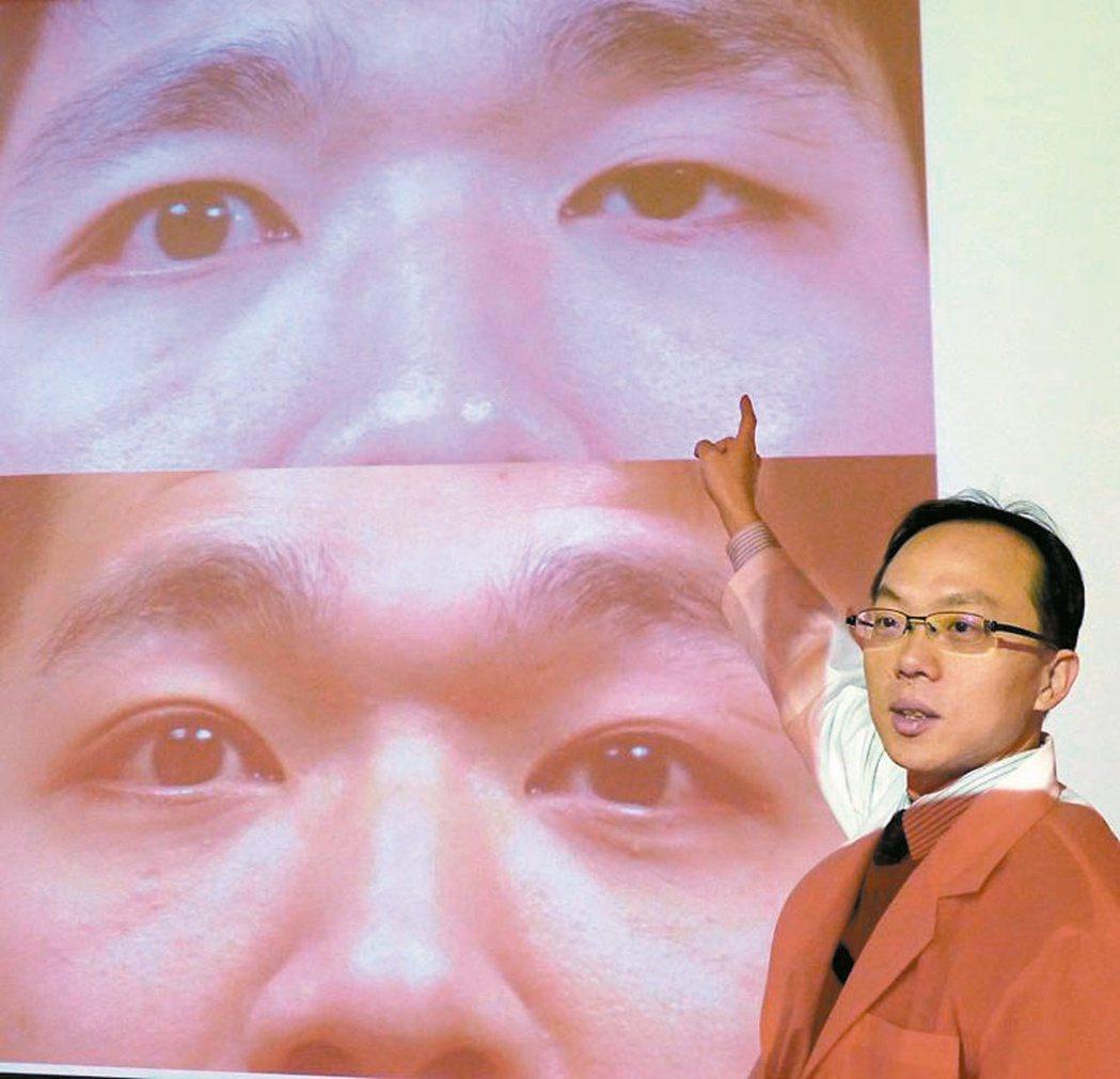 葉姓工程師左眼瞼下垂,眉毛位置較高,形成大小眼(上圖),手術後問題迎刃而解(下圖...