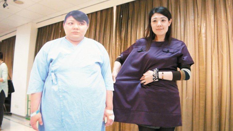 蘇雅婷接受腹腔鏡微創胃縮小手術,手術後一年半甩肉54公斤,穿上以前的衣服如同套布...
