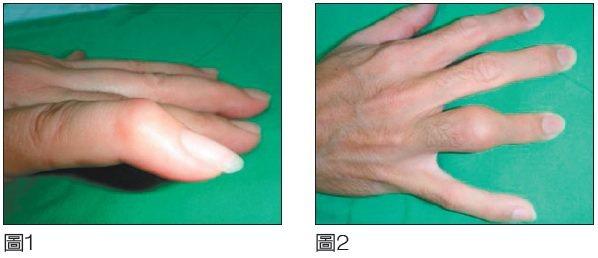 正常手指分為三段,彼此有關節相連,靠近掌心者稱為近端指關節,遠離掌心者稱為遠端指...