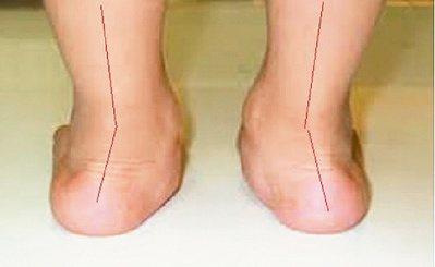 扁平足,外觀即可辨識(圖),赤腳走路更可看出其特有的內傾(pronation)步...