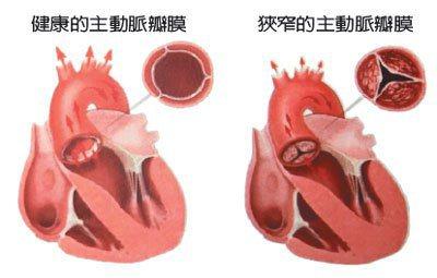 健康的主動脈瓣膜、狹窄的主動脈瓣膜