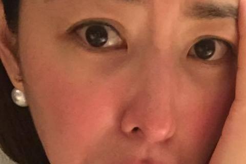 賈永婕日前在臉書上傳一張皮膚紅腫的照片,以驚慌的語氣寫下「天啊!我在幹嘛!」原來她的臉有點小過敏,她下意識拿藥擦,沒想到一張俏臉越擦越紅,她這下才覺得不對勁,赫然發現剛剛擦的是老公的香港腳藥,嚇得她...