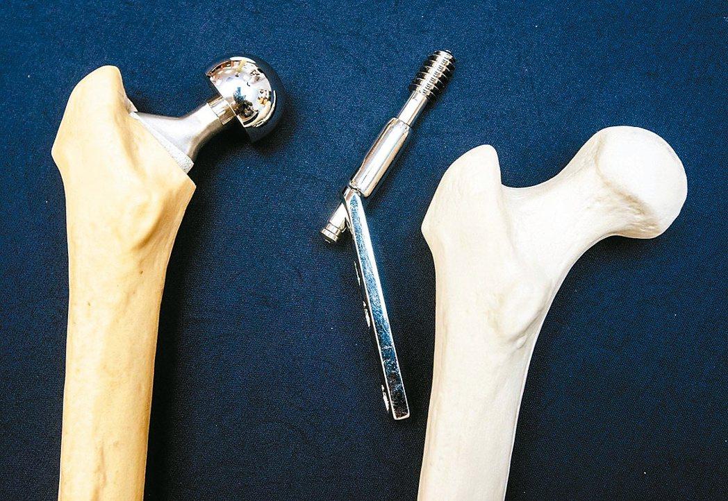 圖為人工關節(左)與傳統固定用鋼釘比較。 報系資料照