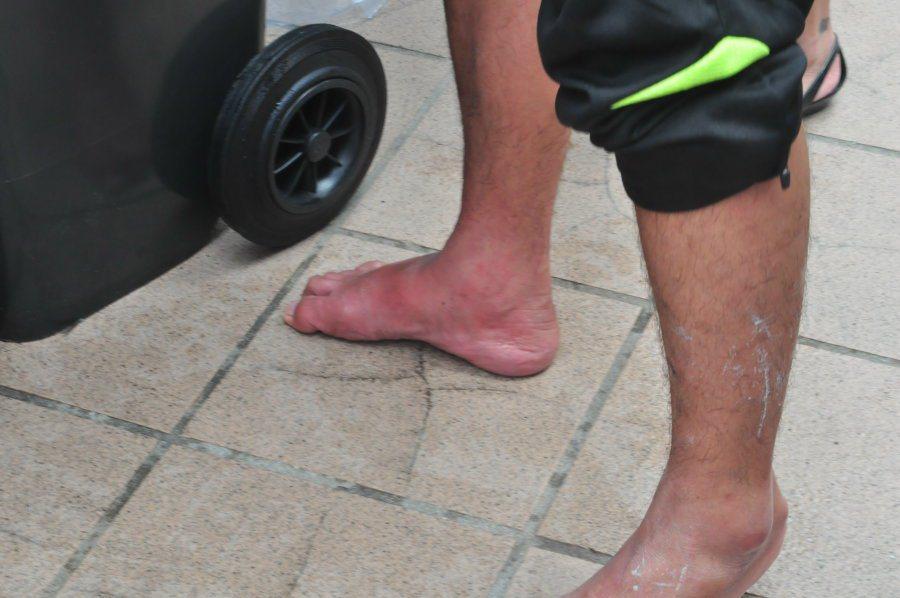久站後,選手小腿腳踝已經嚴重紅通水腫。 記者許信文/攝影