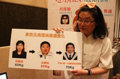 34歲的王玉君,27歲時體重突然劇增,從55公斤暴增到94公斤,還停經超過7年,...