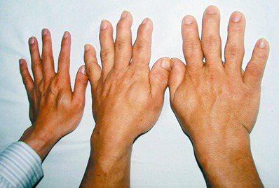 肢端肥大症病徵容易出現手掌肥大、手指粗,俗稱「芭蕉手」,左一為正常手掌。 圖/張...