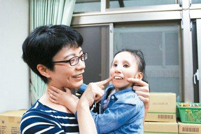 罹患罕病提早衰老的盧玟妤(右)已喪失視力和聽力,母親(左)陳姵安只能靠碰觸傳意感...