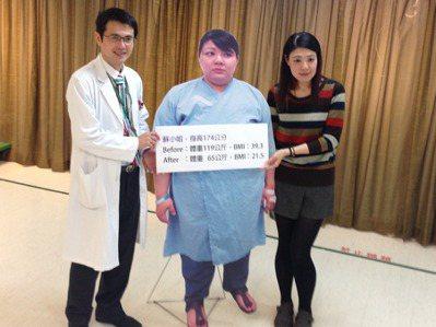 蘇小姐(右)原本體重119公斤,接受秀傳一般外科醫師林建華(左)施行減重手術後,...