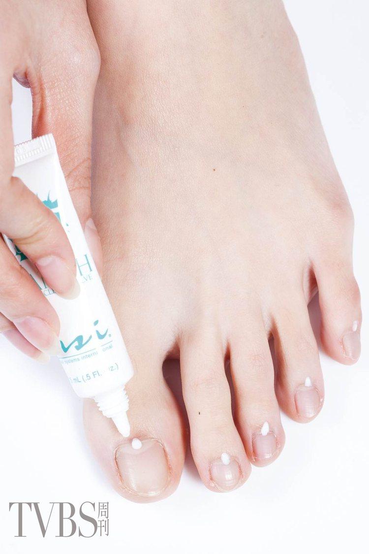 STEP3 在趾緣周圍滴適量指緣軟化液,軟化趾緣甘皮。圖/TVBS周刊提供